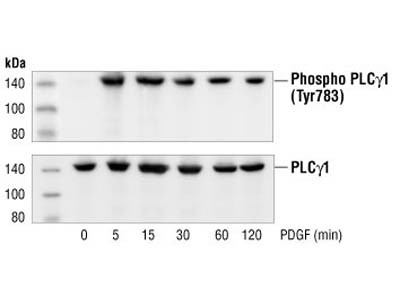 Time Course Effect of Chemotactic Agent on Phospho-PLC-gamma-1 in HASMS