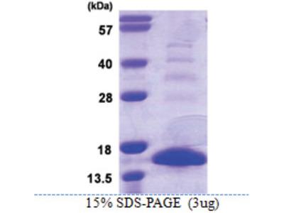 S100A9 / Calgranulin-B / MRP14 (1-113, His-tag)