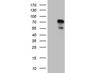 Carrier-free (BSA/glycerol-free) ZNF394 mouse monoclonal antibody,clone OTI1A8