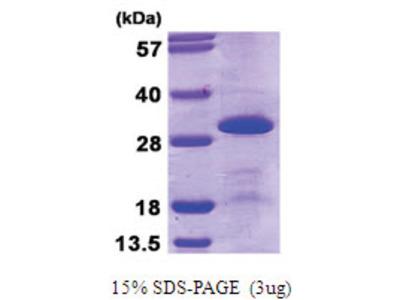 U2 snRNP protein B2 (1-225, His-tag)