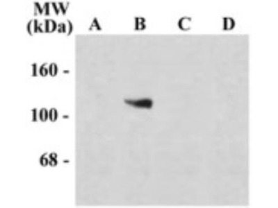 NMDA R, NR1 Subunit Antibody - Splice Variant