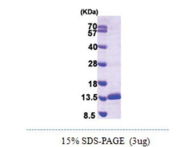 SNRPE (1-92, His-tag)