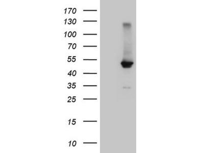 Carrier-free (BSA/glycerol-free) NR1H4 mouse monoclonal antibody,clone OTI4F12