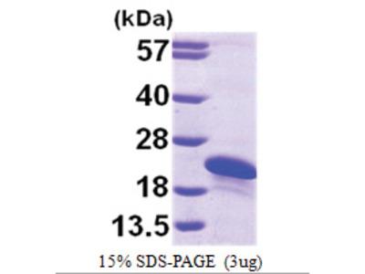 ARL2BP (1-163, His-tag)