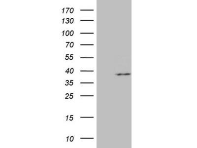 Carrier-free (BSA/glycerol-free) MRPL15 mouse monoclonal antibody, clone OTI10D3 (formerly 10D3)