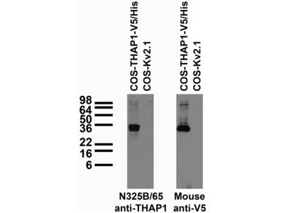 THAP1 mouse monoclonal antibody, clone N325B/65