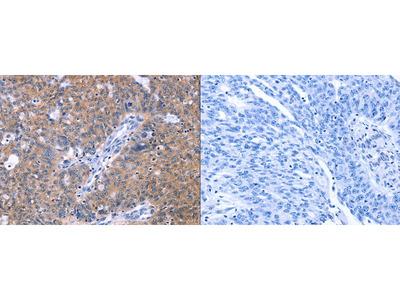 Rabbit Polyclonal Anti-ZNF395 Antibody