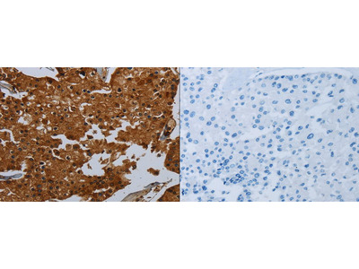Rabbit Polyclonal Anti-ENTPD7 Antibody