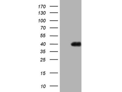 Carrier-free (BSA/glycerol-free) PAGE1 mouse monoclonal antibody, clone OTI13B1 (formerly 13B1)