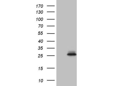 CHP1 mouse monoclonal antibody,clone OTI1D11