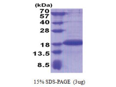 PGL2 / SDHAF2 (30-166, His-tag)