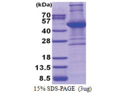 ACTA2 / aortic smooth muscle Actin (3-377, His-tag)