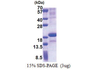 SCN3B (23-159, His-tag)