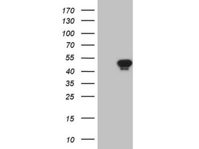 Carrier-free (BSA/glycerol-free) AMACR mouse monoclonal antibody, clone OTI3H10 (formerly 3H10)