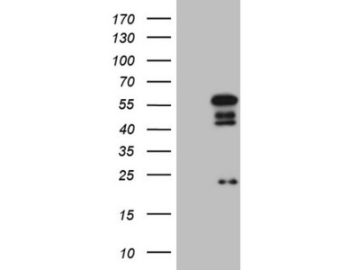 Carrier-free (BSA/glycerol-free) NR2E3 mouse monoclonal antibody, clone OTI1D3 (formerly 1D3)