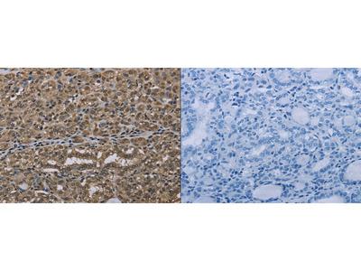 Rabbit Polyclonal Anti-NLRP6 Antibody