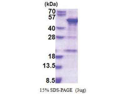 SNAPC1 / SNAP43 (1-368, His-tag)