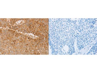 Rabbit Polyclonal Anti-PACSIN2 Antibody