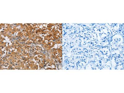 Rabbit Polyclonal Anti-ATP1B2 Antibody