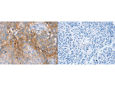 Rabbit Polyclonal Anti-PLCZ1 Antibody