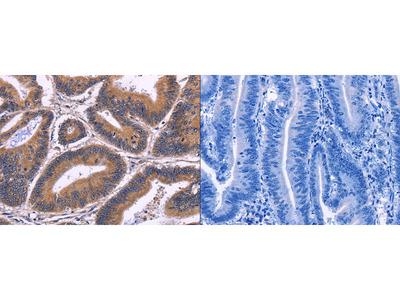 Rabbit Polyclonal Anti-SPATA7 Antibody