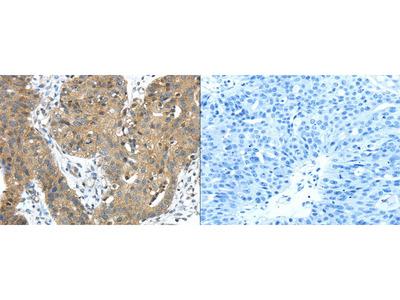 Rabbit Polyclonal Anti-TMPRSS11E Antibody