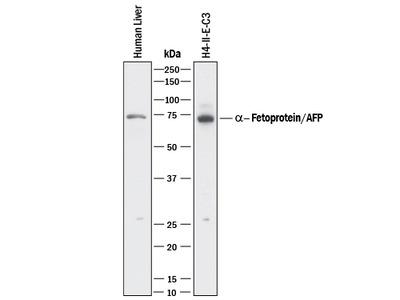 alpha-Fetoprotein / AFP Antibody