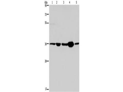 Rabbit Polyclonal Anti-LZTFL1 Antibody