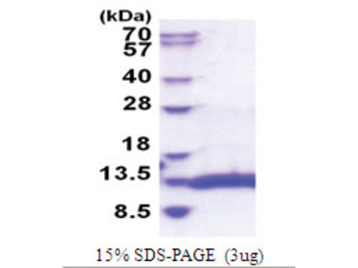Selenoprotein W (SELW) (1-87, His-tag)