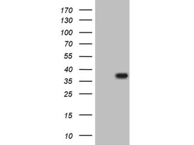 THAP5 mouse monoclonal antibody,clone OTI2D7
