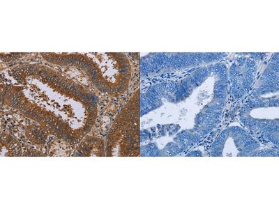 Rabbit Polyclonal Anti-NPTX1 Antibody