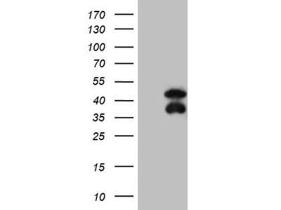 BCL7B mouse monoclonal antibody,clone OTI2D9