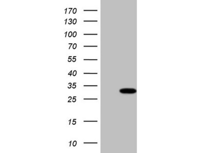 Carrier-free (BSA/glycerol-free) TBC1D28 mouse monoclonal antibody, clone OTI4A9 (formerly 4A9)