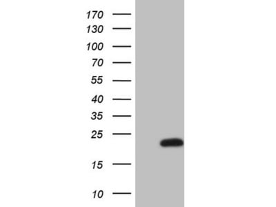 Carrier-free (BSA/glycerol-free) MLANA mouse monoclonal antibody, clone OTI1A7 (formerly 1A7)
