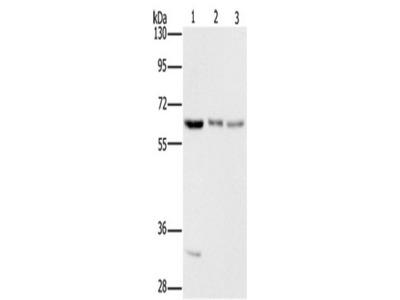 Rabbit Polyclonal Anti-AAAS Antibody