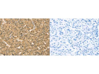 Rabbit Polyclonal Anti-TMPRSS3 Antibody