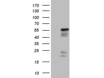 Carrier-free (BSA/glycerol-free) NR2E3 mouse monoclonal antibody, clone OTI2F6 (formerly 2F6)