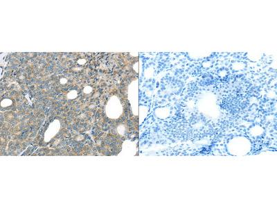 Rabbit Polyclonal Anti-THSD1 Antibody