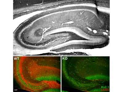 Kcnma1 mouse monoclonal antibody, clone L6/60