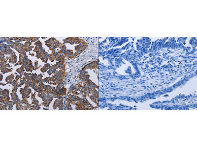 Rabbit Polyclonal Anti-TRIM13 Antibody