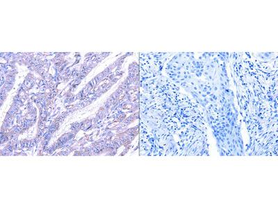 Rabbit Polyclonal Anti-THAP6 Antibody