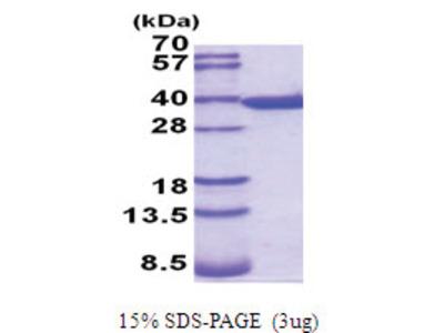 Annexin A5 / ANXA5 (1-319, His-tag)