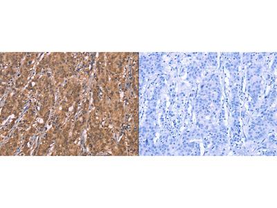 Rabbit Polyclonal Anti-FBXO31 Antibody