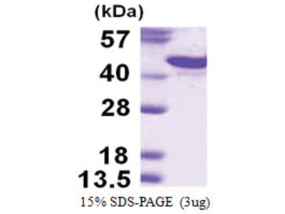 CD138 / Syndecan-1 (18-254, His-tag)