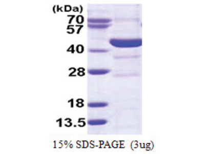 Spermine synthase (SMS) (1-366, His-tag)