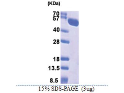 HSPA13 / STCH (23-471, His-tag)
