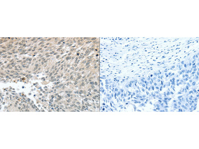 Rabbit Polyclonal Anti-PALB2 Antibody