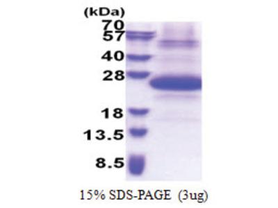 SSSCA1 (1-199, His-tag)