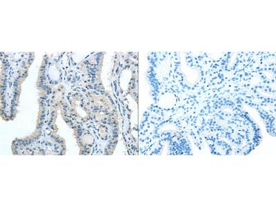 Rabbit Polyclonal Anti-TRIB1 Antibody
