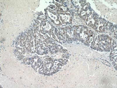 CTR9 antibody
